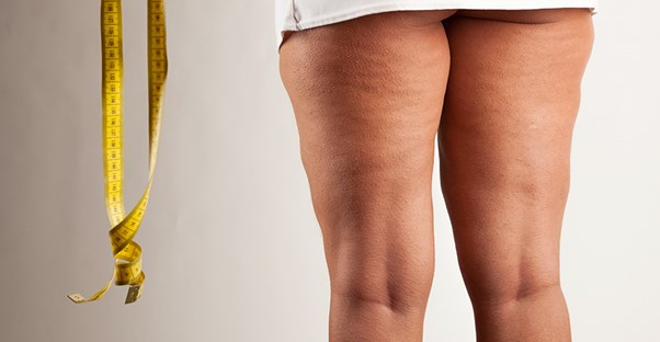 A woman worries about cellulite