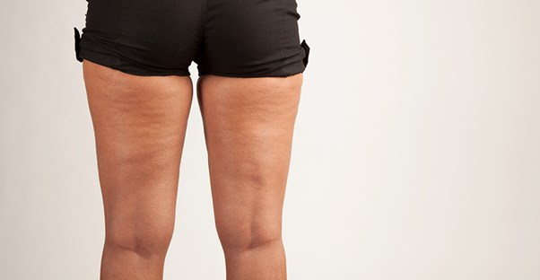 A woman embraces her cellulite
