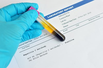 A hepatitis test