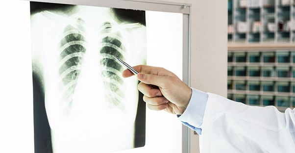 A doctor examines a chest x ray
