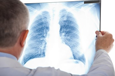 A doctor examines a patients chest x ray