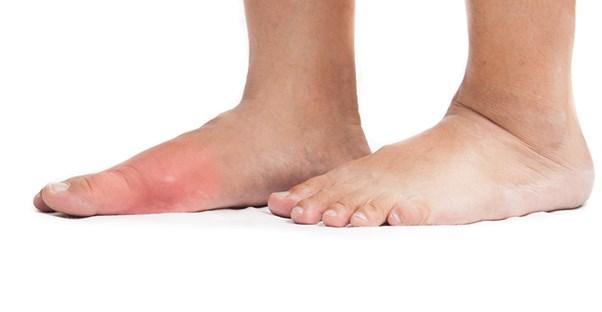 An affected foot