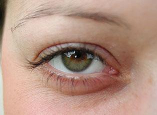 Chronic Dry Eyes Prevention