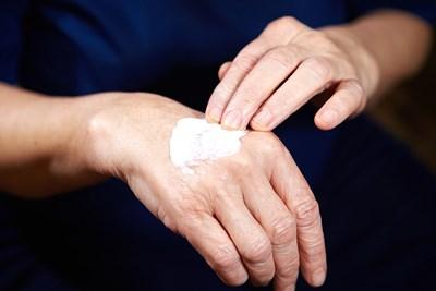 Age Spot Treatments