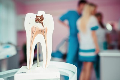 A model of a tooth