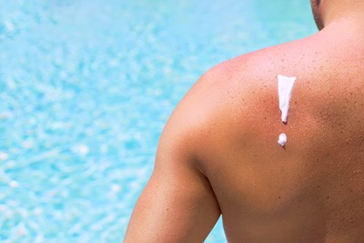 How Do You Treat Sunburn Blisters?