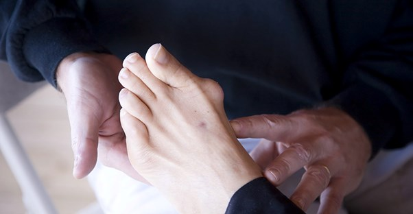 A woman experiences bunion pain