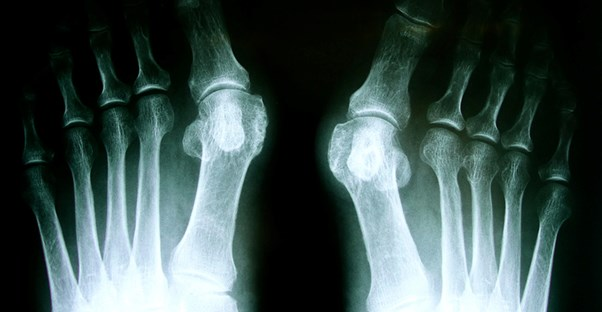 A bunion x-ray