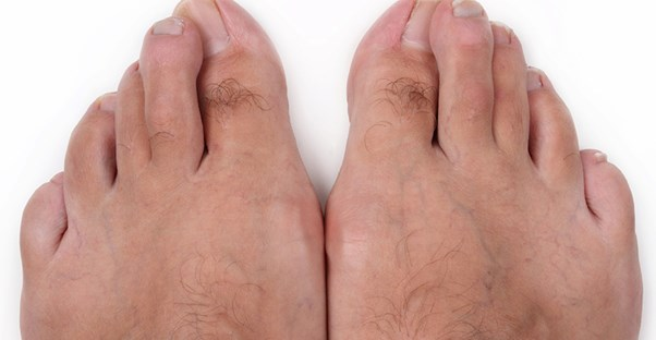 Some toes with bunions