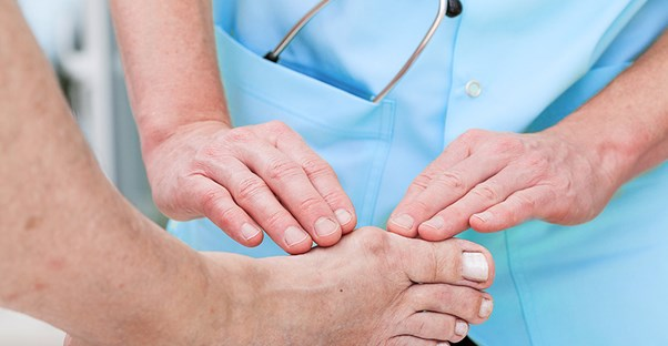A doctor treats a bunion