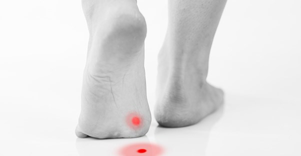Home Remedies for Plantar Warts