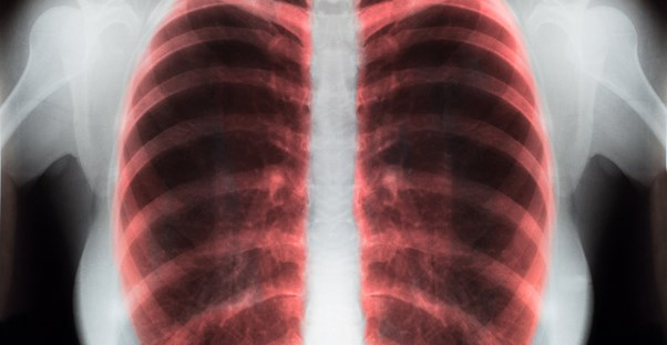 an x-ray of a lung shows how COPD treatment is working