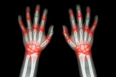 arthritis symptoms highlighted on an x-ray of hands