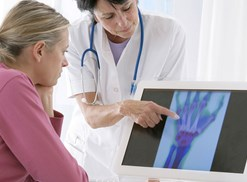 woman and doctor looking at x-ray of hand and discussing arthritis treatments