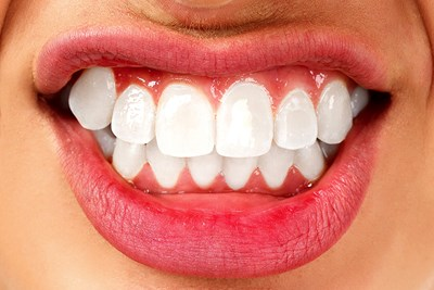What is Bruxism?
