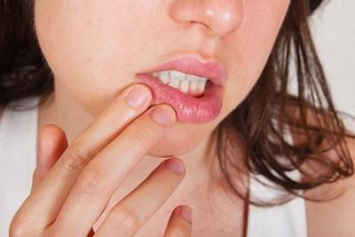 Chapped Lips Symptoms