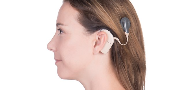 What Is a Cochlear Implant and How Does It Work?