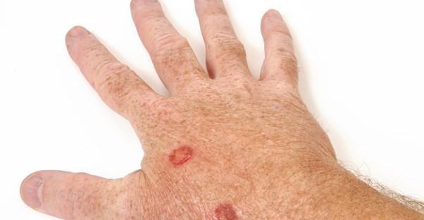 Lupus Symptoms