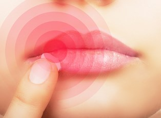 a woman examines a cold sore on her lip