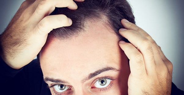 a man examines his side part for hair loss