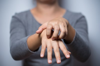 a woman with eczema scratches her hands