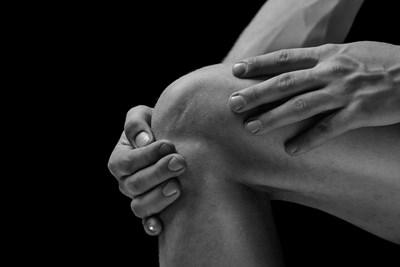 Rheumatoid Arthritis Information