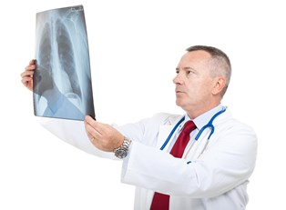 a doctor examines an x-ray looking for lung cancer