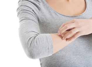 A woman scratching her eczema