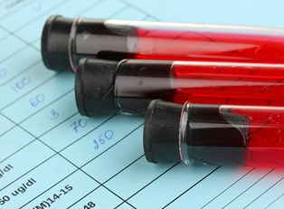 vials of blood are ready for HIV testing