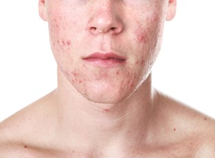 Cystic Acne Treatments