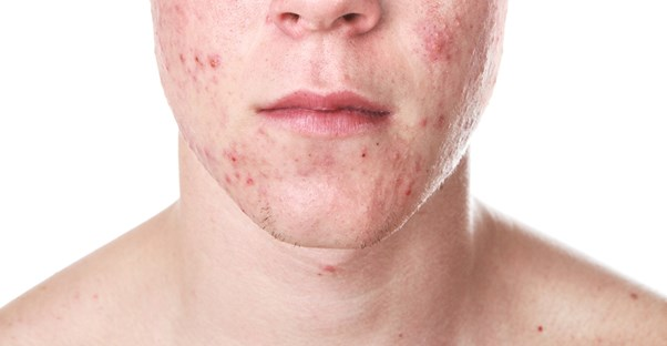 a man who needs cystic acne treatments