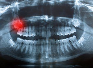 What are Impacted Wisdom Teeth?