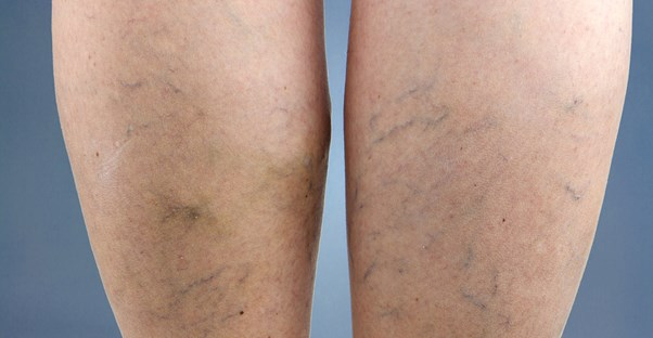 a woman with spider veins