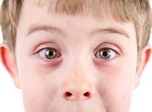 Pink Eye: All You Need to Know in 6 Photos
