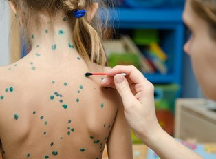 A child is treated for chickenpox