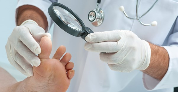 A doctor examines a patient's foot fungus