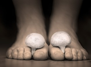 Dealing with foot fungus
