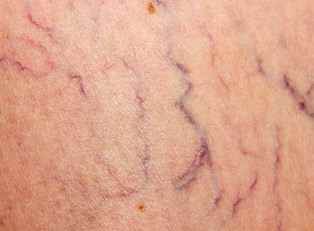 The difference between spider veins and varicose veins