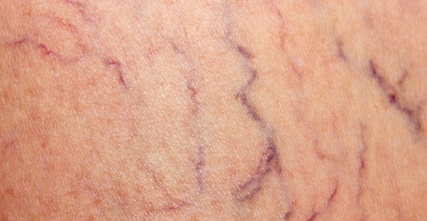 Spider Veins vs. Varicose Veins: What's the Difference?