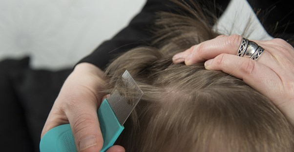 Treatments for head lice