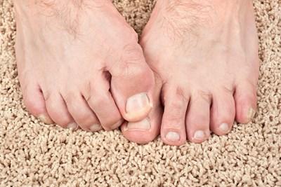 Severe toenail fungus