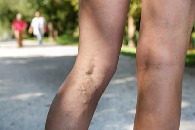 A womans deep vein thrombosis
