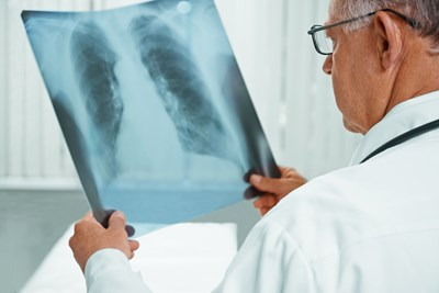 A doctor examines an x-ray