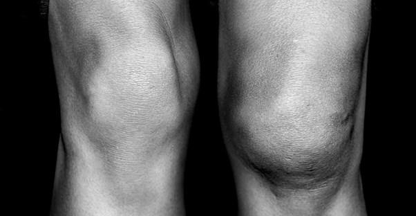 A nice pair of knees