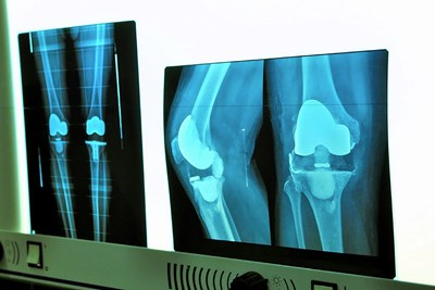 A knee replacement x-ray