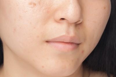 Facial Scar Treatment Home Remedies