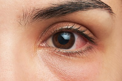 Home Remedies for Itchy Eye Relief