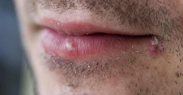 Cold Sore Remedies