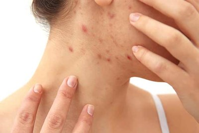 What Your Pimples Say About Your Body