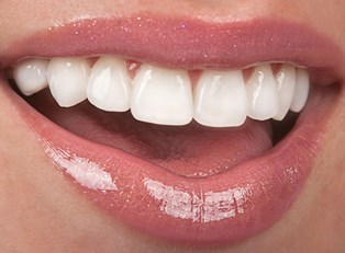 a woman who knows what dental veneers are